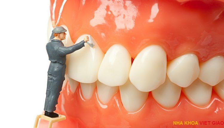 detartraj-dentar