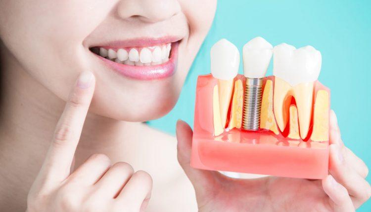 implant-dentar-din-Bucuresti