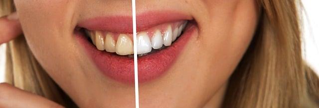 clinica-dentara-Elveto-Dent